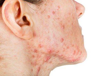 Traitement du cancer de la peau : À quoi s'attendre